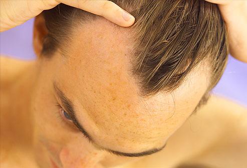 Maschera di senape per capelli senza uovo e olio
