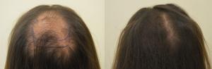 Restauro di crescita di capelli dopo un alopetion