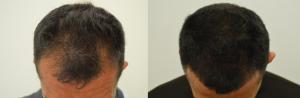 Maschera per capelli da vitamina di gruppo in