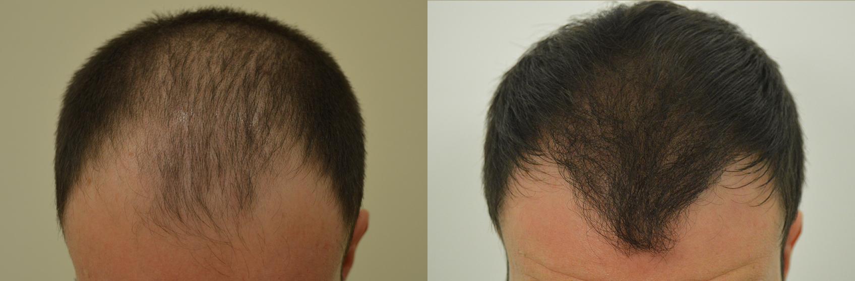 Perdita di capelli con una radice