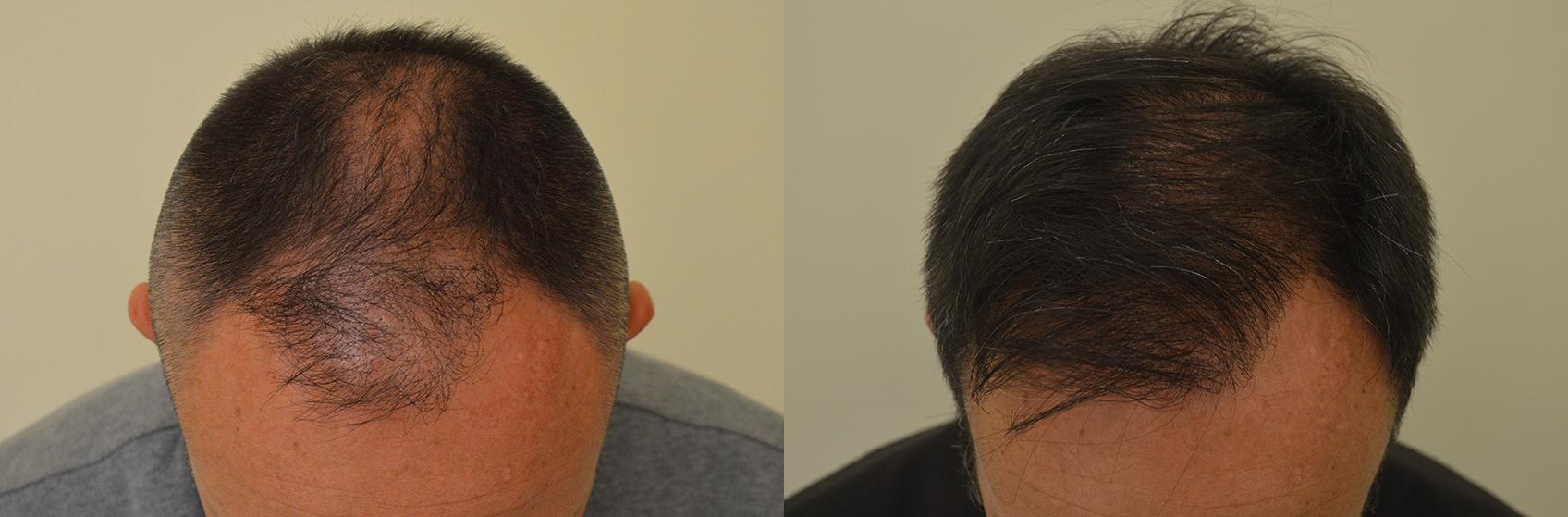 Vitamine A e a per capelli e una faccia