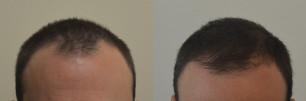 stempiatura frontale rimedi