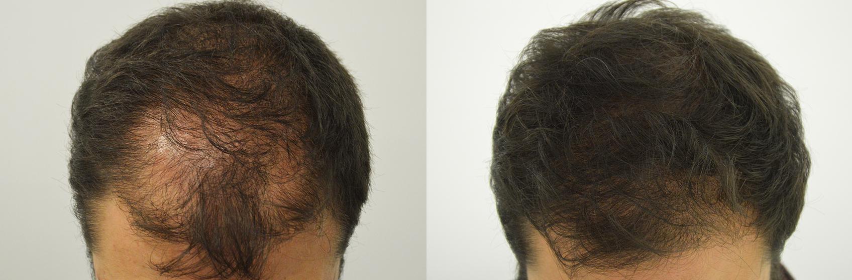 risultato-trapianto-capelli-uomo