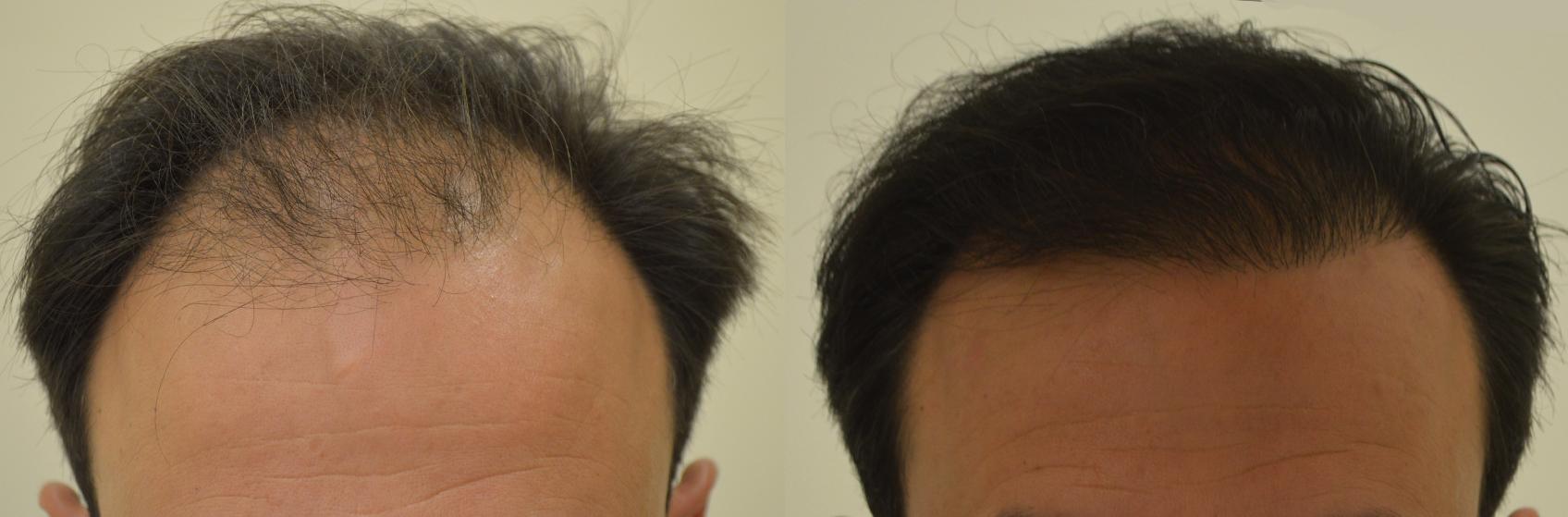trapianto-capelli-calvizie