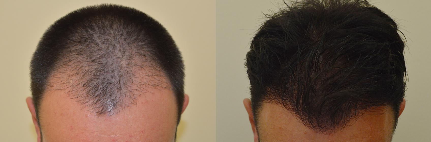 trapianto capelli migliore