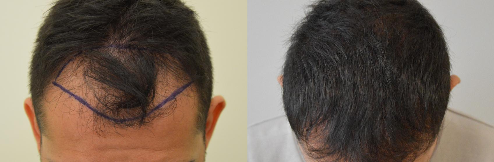 Dopo esser arrossito di capelli quando è possibile mettere una maschera