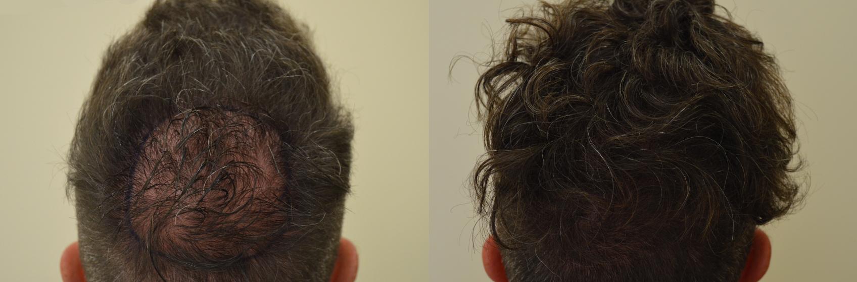 Il rimedio di gente che rallenta la crescita di capelli