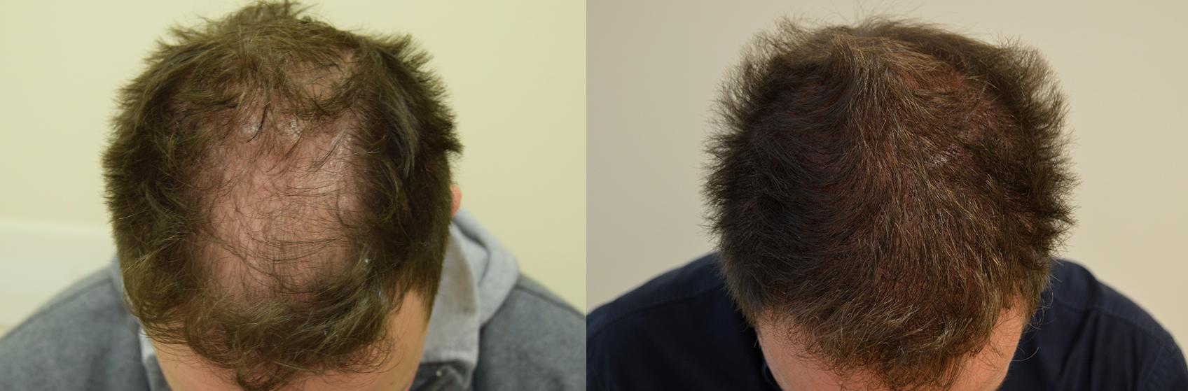prima-dopo-trapianto-capelli