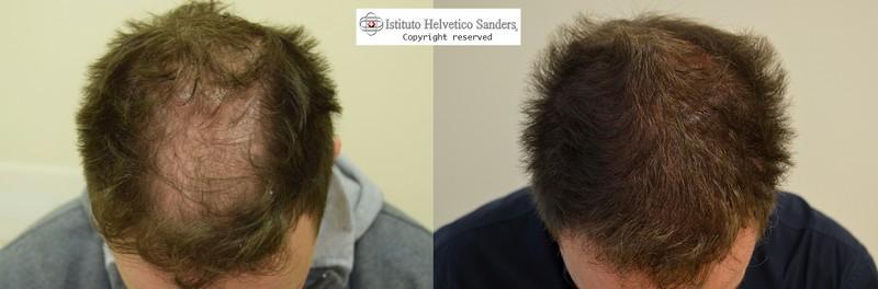 infoltimento capelli