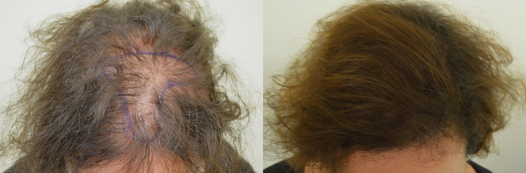 autotrapianto capelli su calvizie femminile