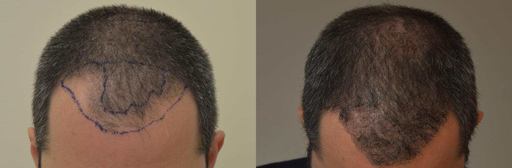 linea-frontale-uomo