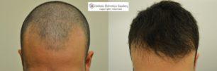 ricrescita capelli dopo trapianto