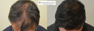 diradamento parte superiore trapianto capelli