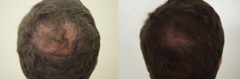stress e perdita di capelli