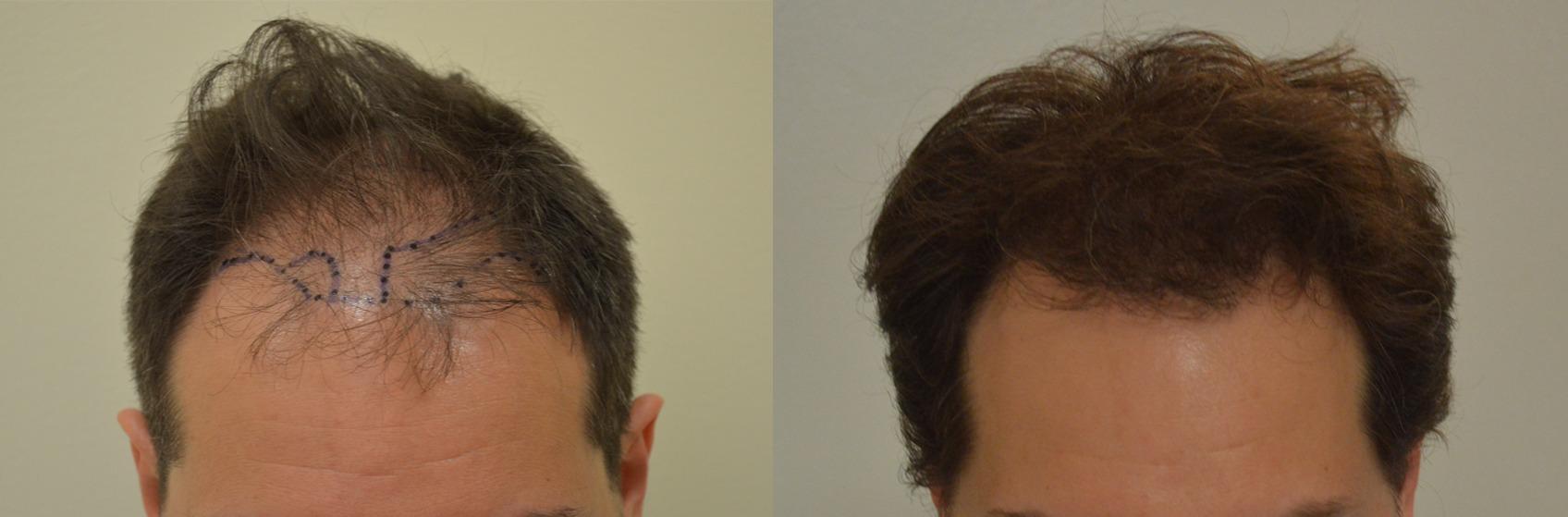 Alcuni farmaci possono provocare la caduta di capelli