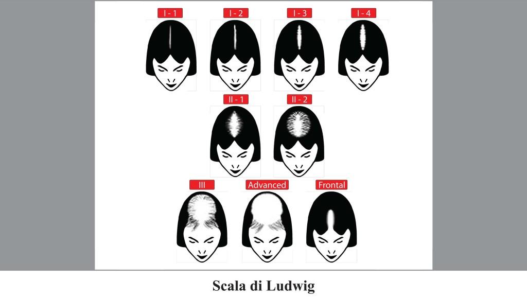 calvizie_femminile_scala_Ludwig
