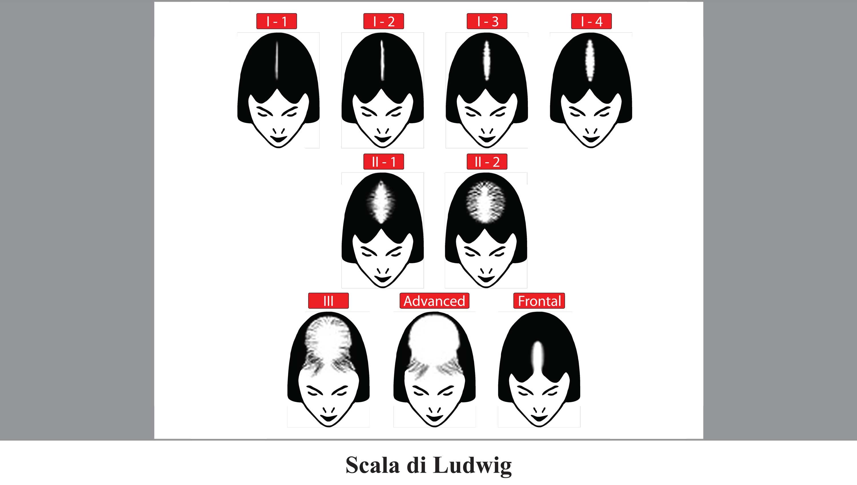 scala di classificazione della calvizie femminile