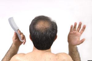 Alopecia androgenetica o calvizie comune o maschile - Sanders a63765829869