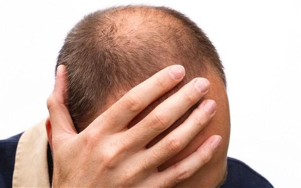 perché cadono i capelli