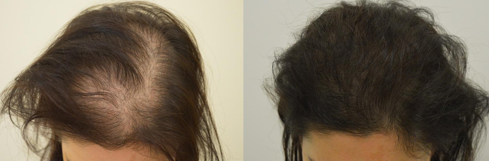 Caduta capelli post partum - Sanders