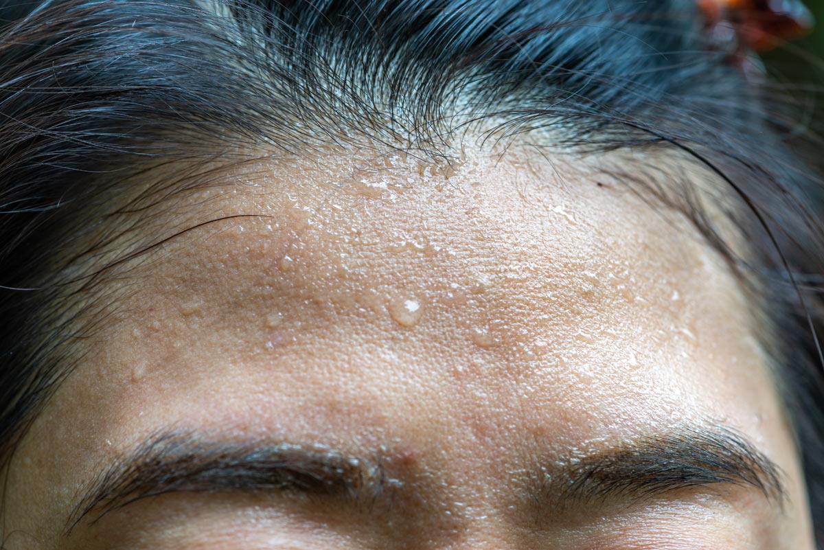 Problemi di capelli: iperidrosi