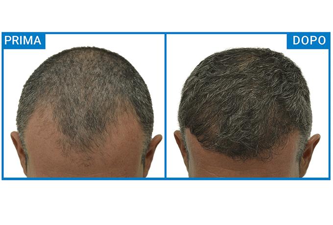 carell-trapianto-capelli-esempio