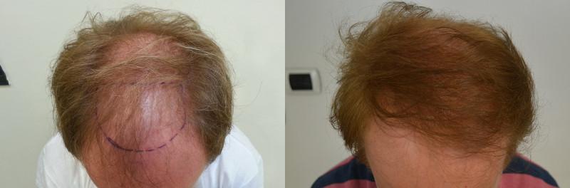 Risultati trapianto capelli su calvizie di livello 6