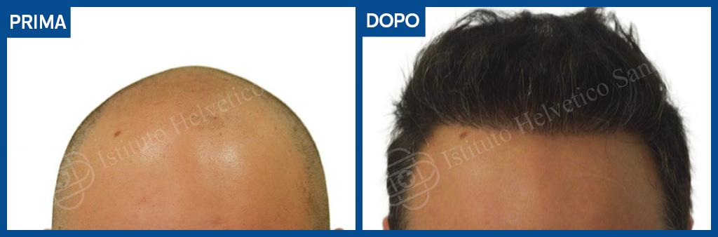 calvizie giovanile: il trapianto di capelli