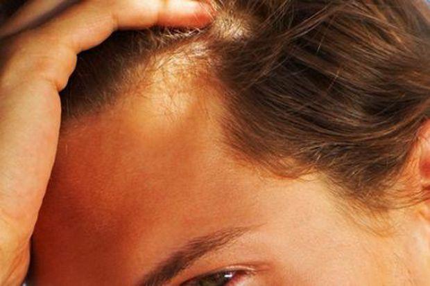 Caduta capelli donne 18 anni