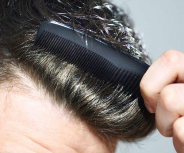 Perdita capelli uomo cosa fare