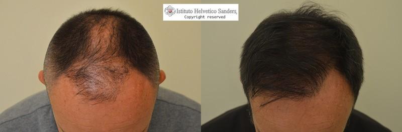 trapianto capelli calvizie maschile