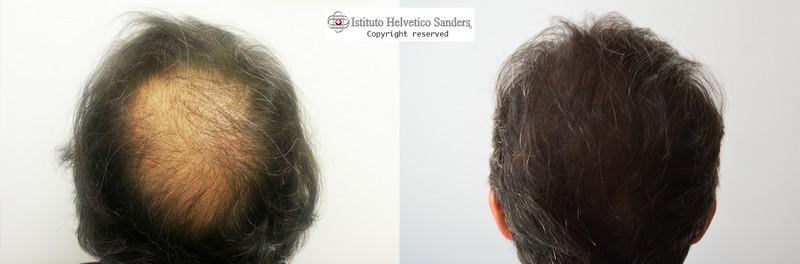 trapianto capelli pre-post