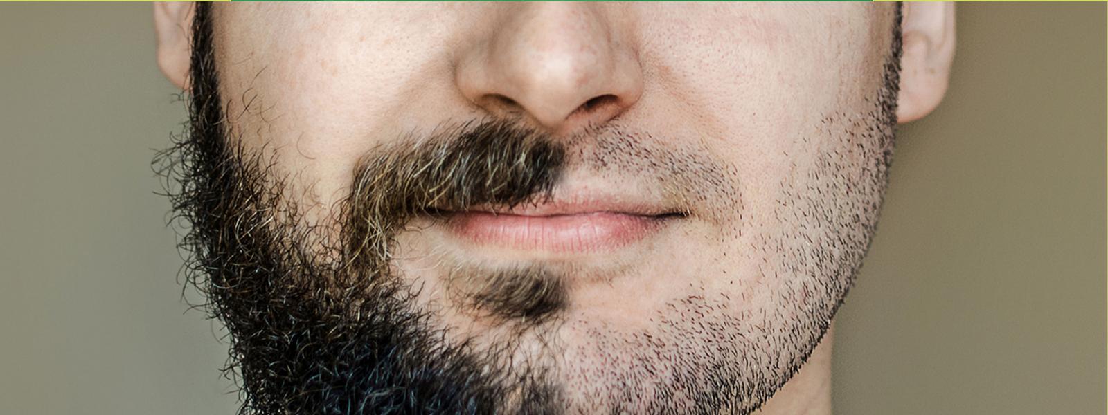 Nuovo studio mette in correlazione calvizie e barba