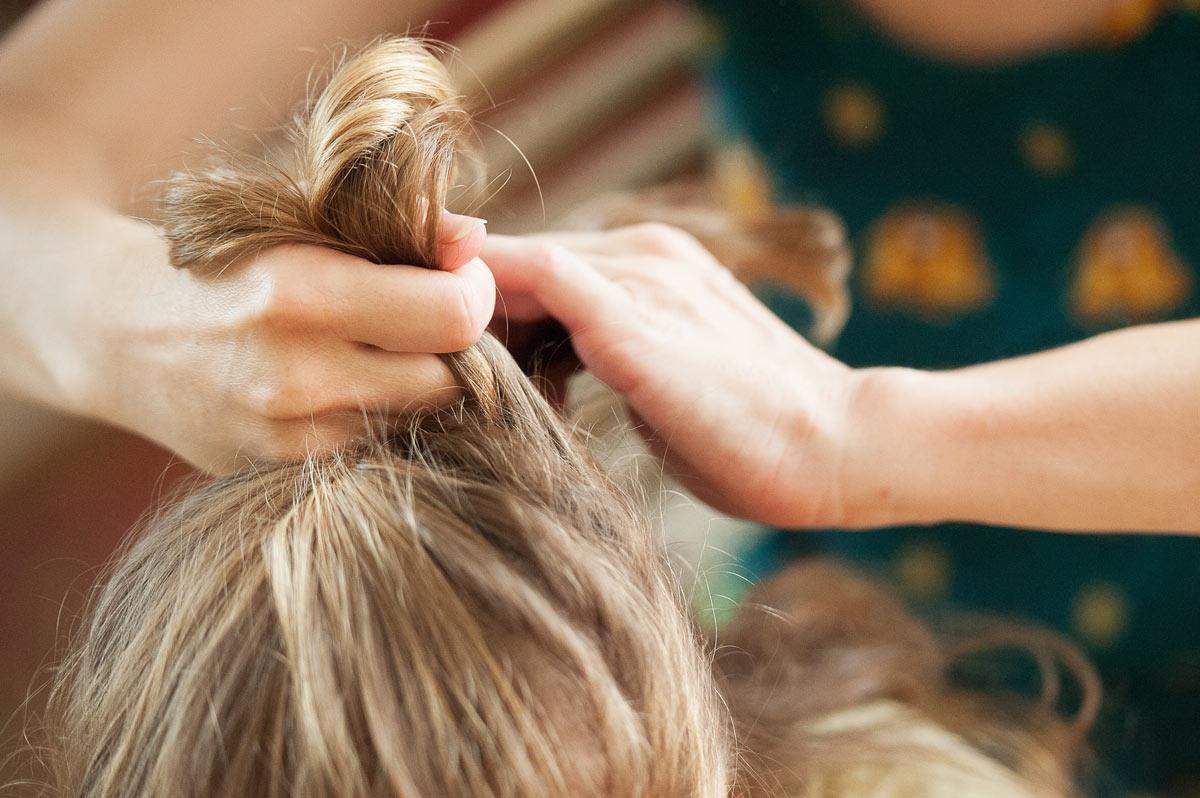 Alopecia da Trazione
