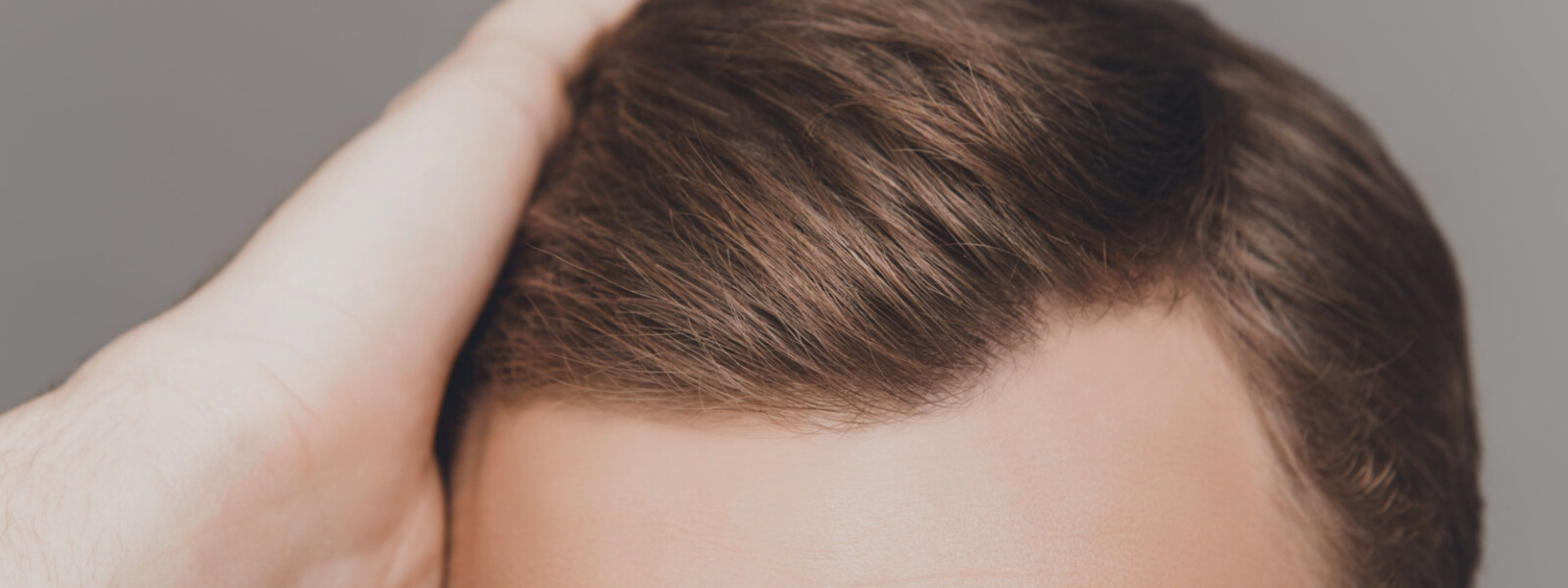 Alcuni miti sulla caduta capelli e arretramento dell ...