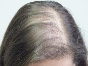 alopecia androgenetica donna