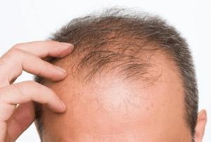 effluvio e defluvio capelli sanders