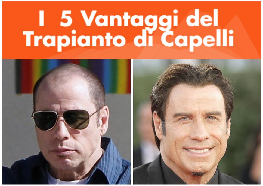 I Vantaggi del Trapianto Capelli tecnica FUE - Istituto Helvetico Sanders af5132419a9c