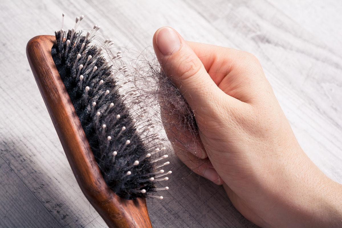 Alopecia da trazione cos'è