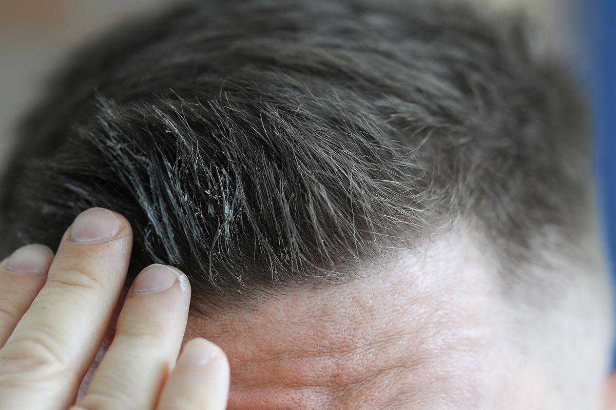 il gel può far cadere i capelli?