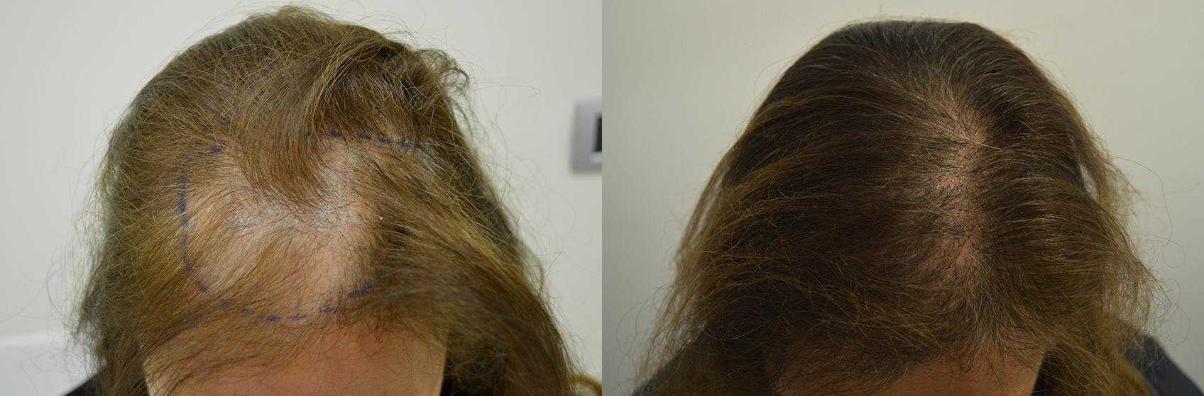 Trapianto capelli: alopecia femminile - Istituto Helvetico ...