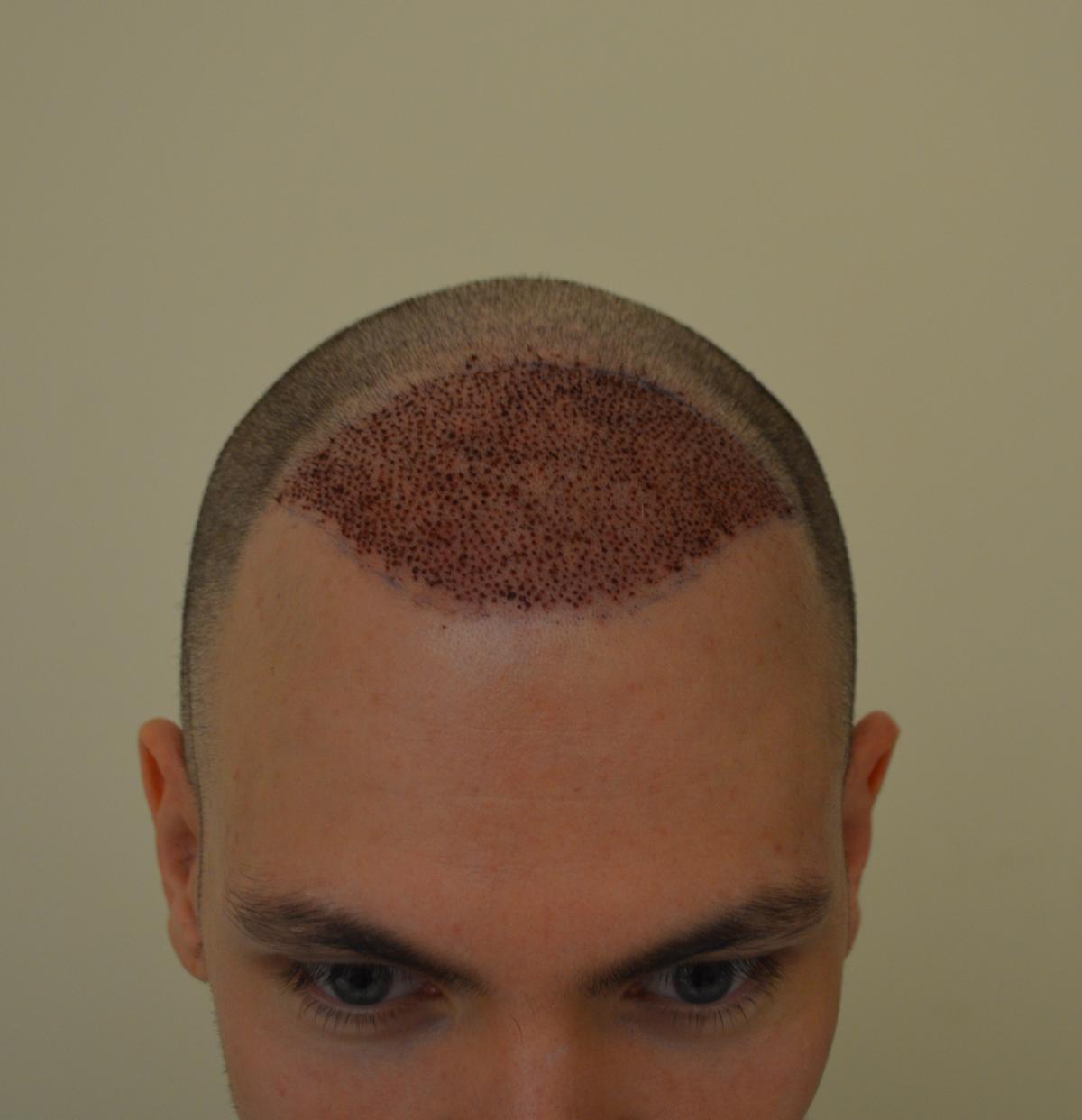 post operatorio trapianto capelli