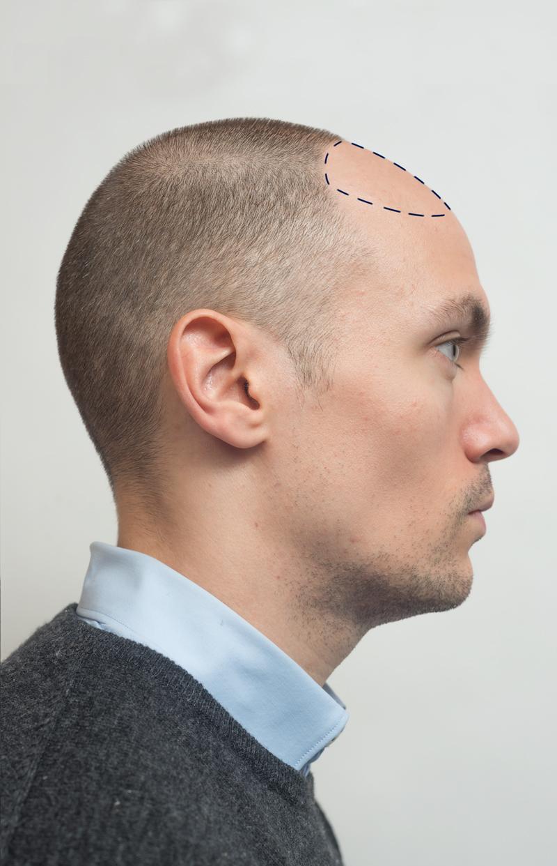 Trapianto di capelli F.U.E.