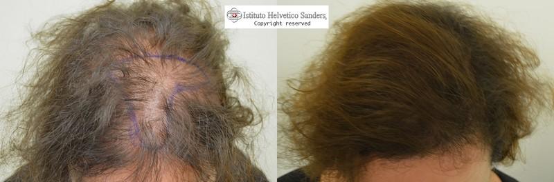 trapianto capelli donna