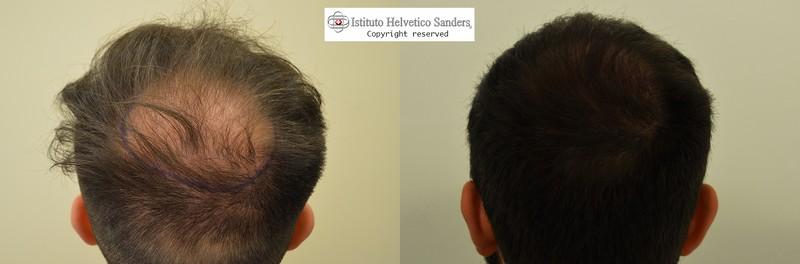 rinfoltimento capelli vertice