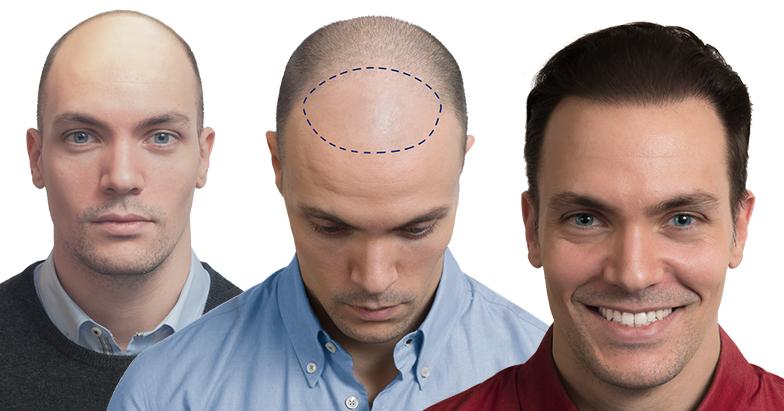 autotrapianto capelli esperienza di Filippo