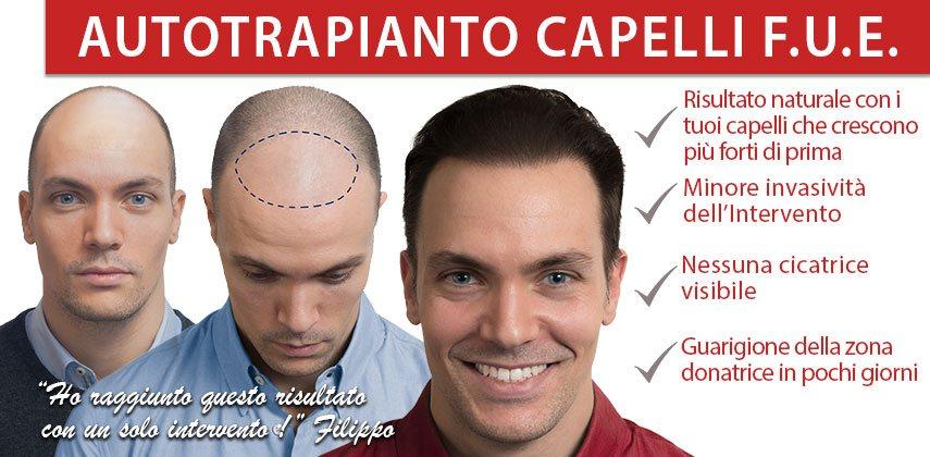trapianto capelli Istituto Helvetico Sanders