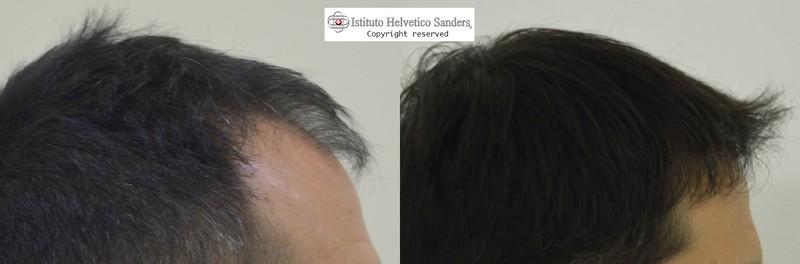 trapianto capelli laterale