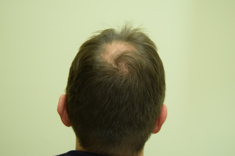 Caduta capelli vertice uomo