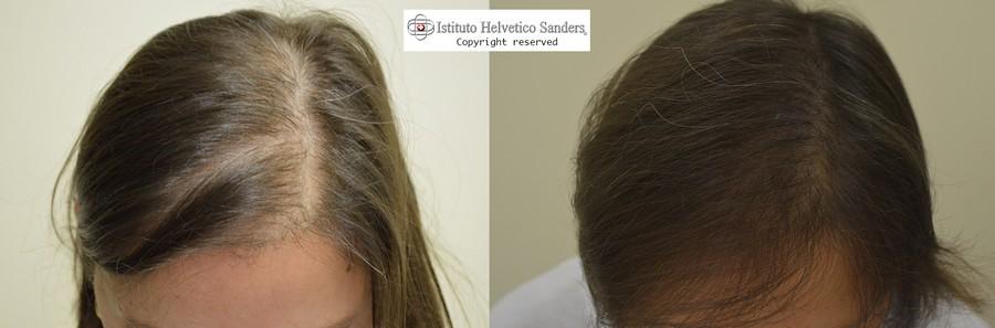 Caduta capelli donne trapianto